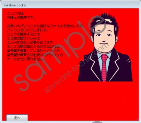 Takahiro Locker Removal Guide